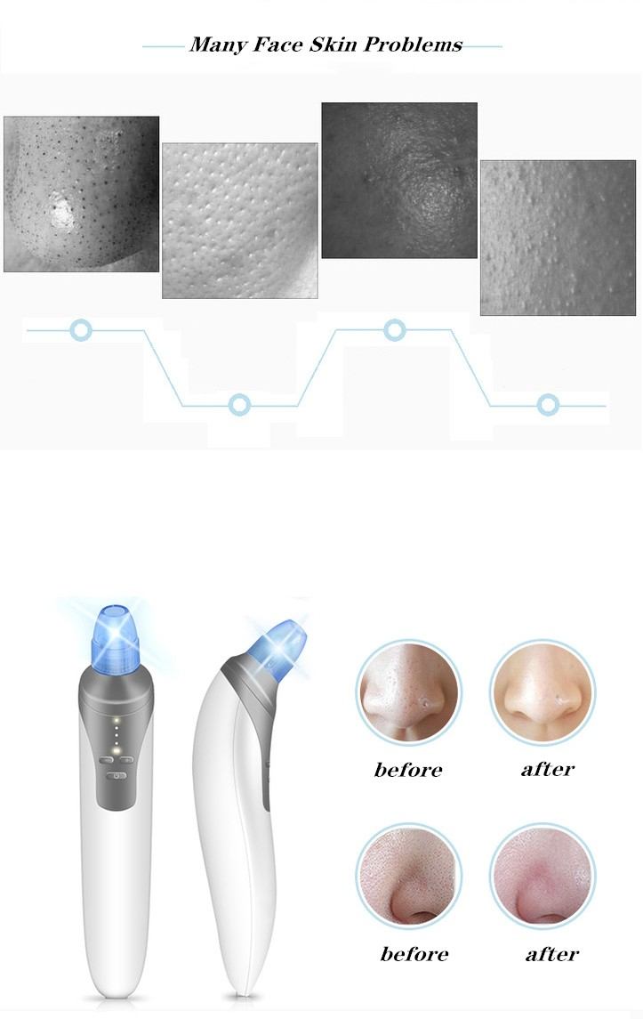best facial beauty instrument body care